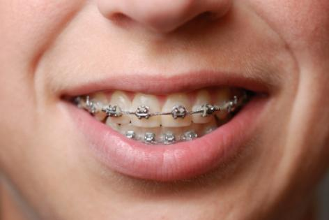 It had become evident that my 13 year old son was losing his battle against  straight teeth and braces were being recommended by our dentist at one of  those ...