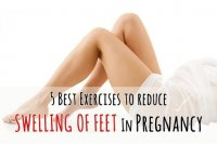 5-exercises-to-reduce-swelling-of-feet-pregnancy  large